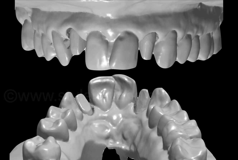 digital model and abutment scanning