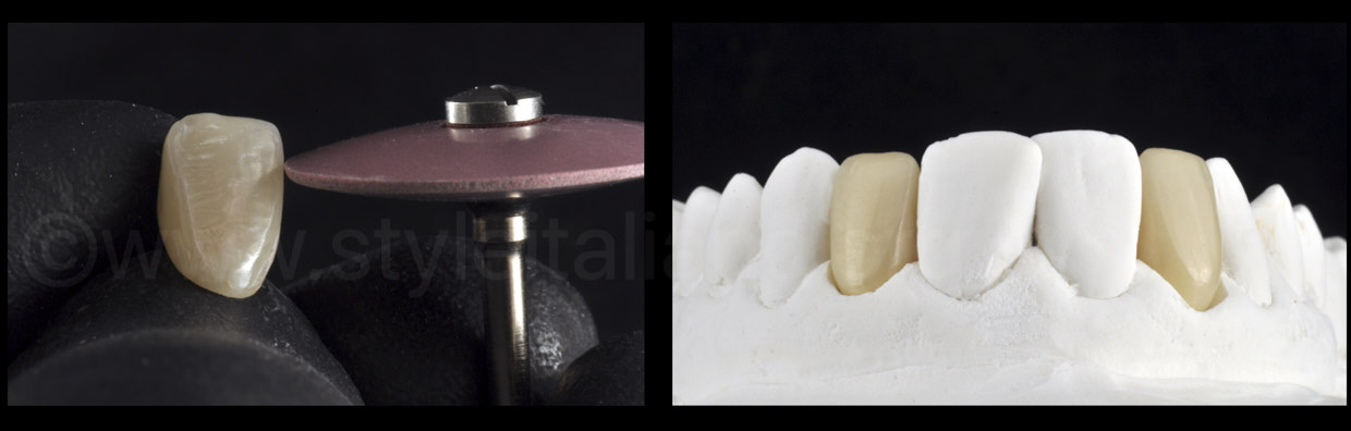 rubber contouring of zirconia crowns