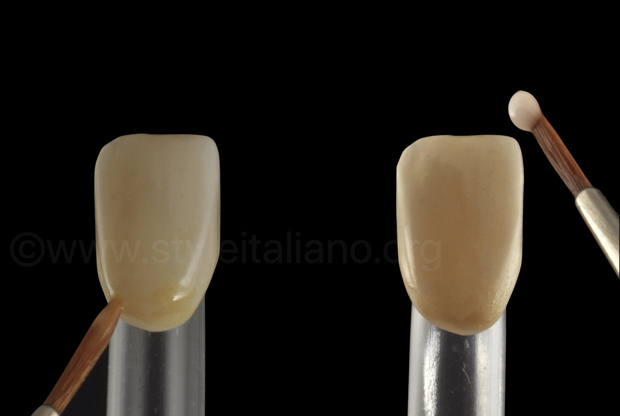 staining of zirconia crowns for a natural effect
