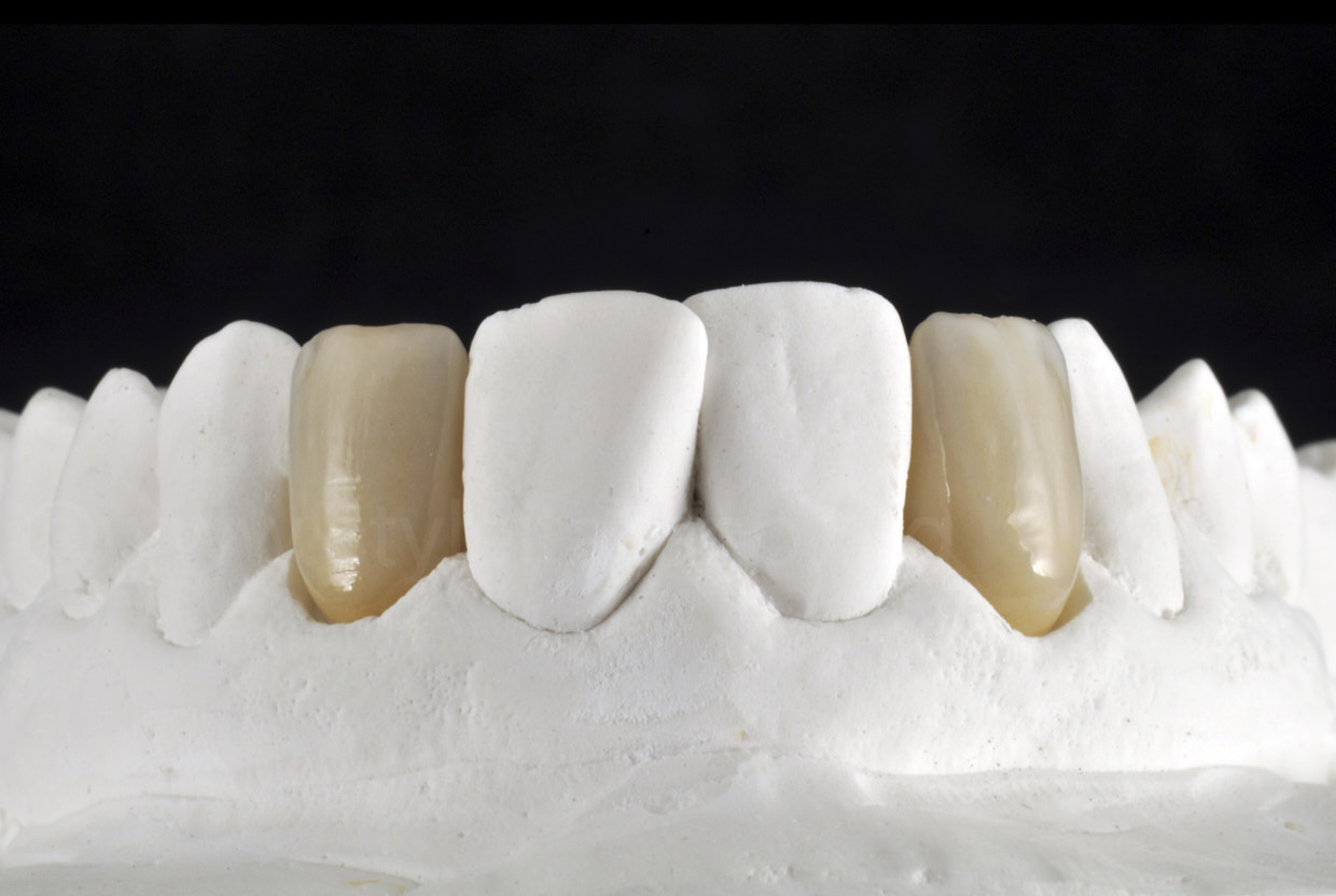 finished zirconia crowns