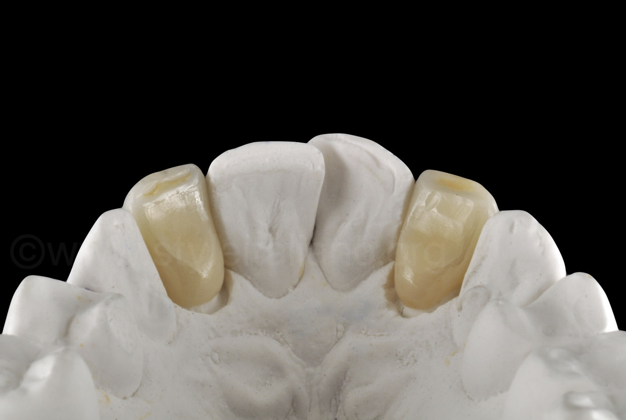 palatal view of prosthetic zirconia crowns