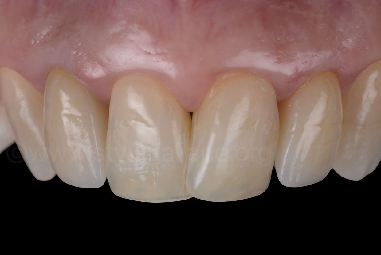 zirconia crowns on lateral incisors after luting