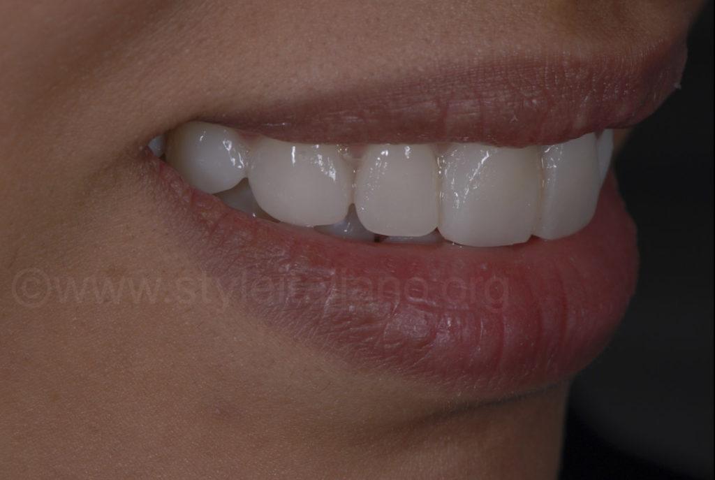 resin mock-up for smile make over