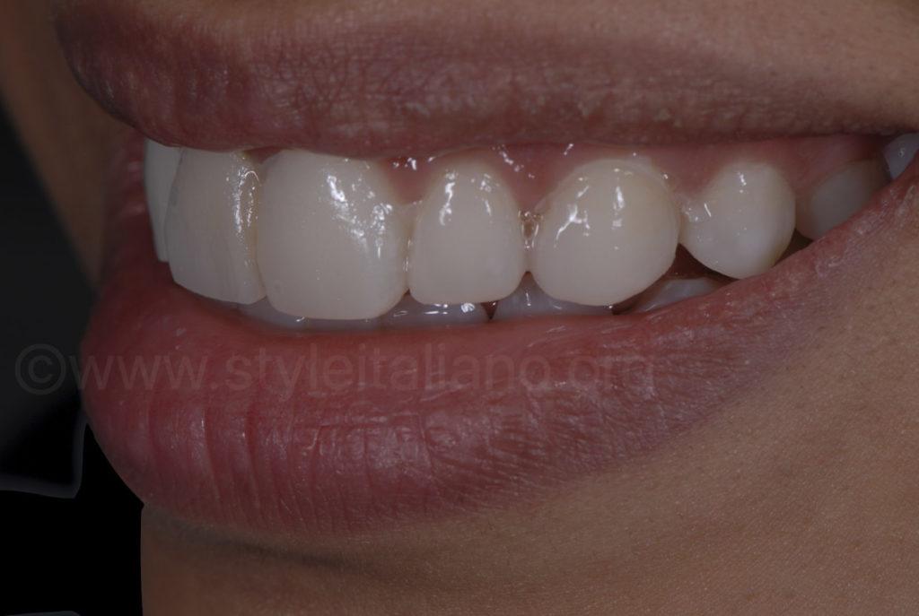 resin mock-up for smile makeover