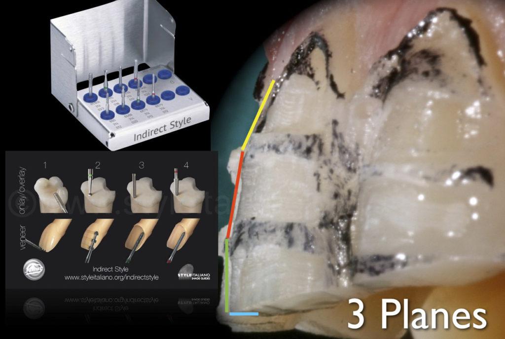 minimal invasive preparation for veneers