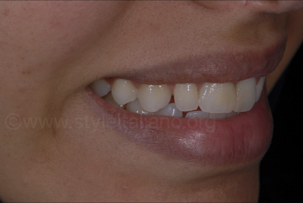 laterak view of smile and canine diastema