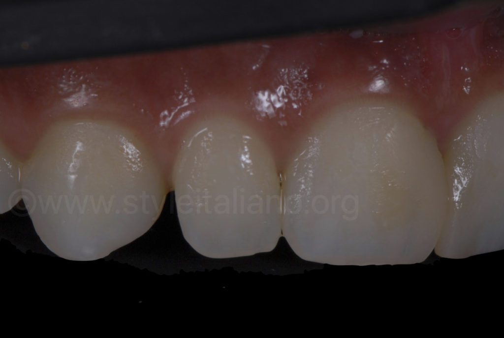 diastema between canine and lateral incisor
