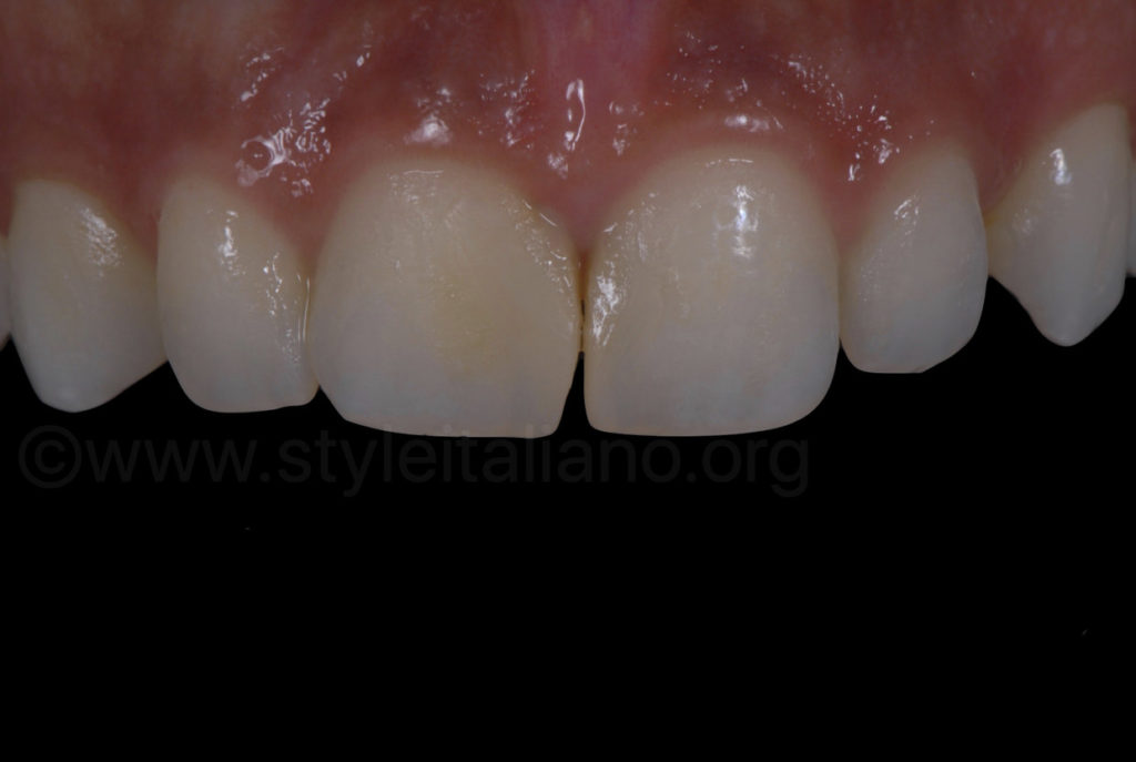 tipped and dark central incisor