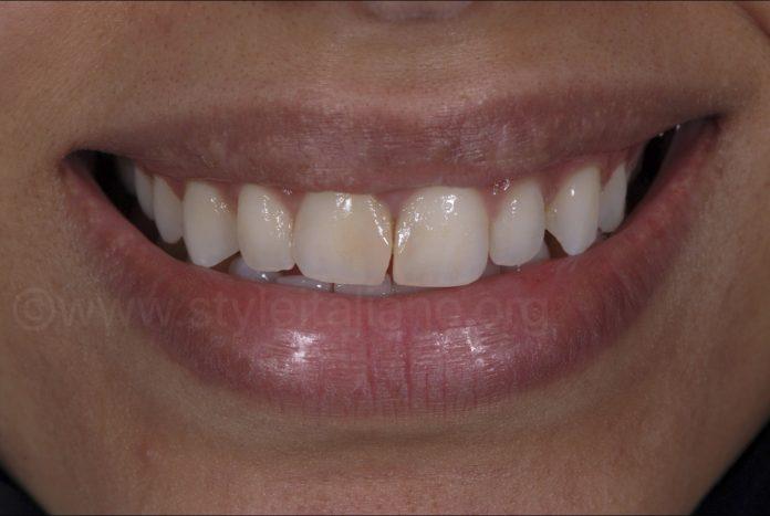 smile with dark crooked teeth
