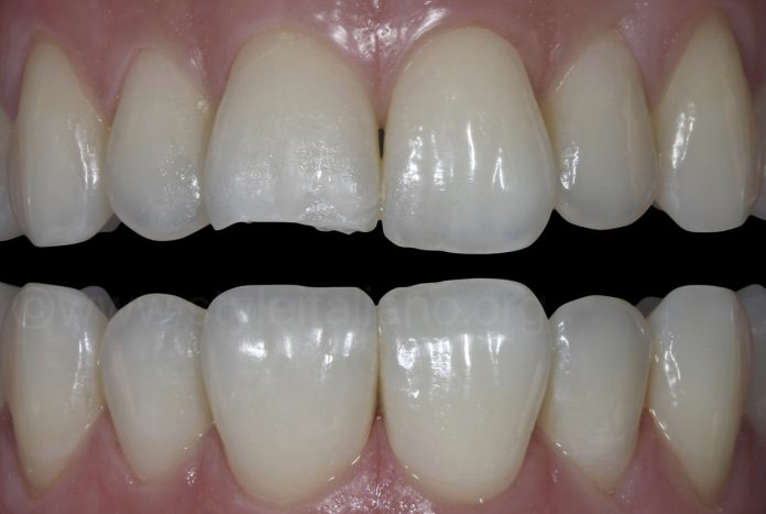 before and after restoration of broken tooth