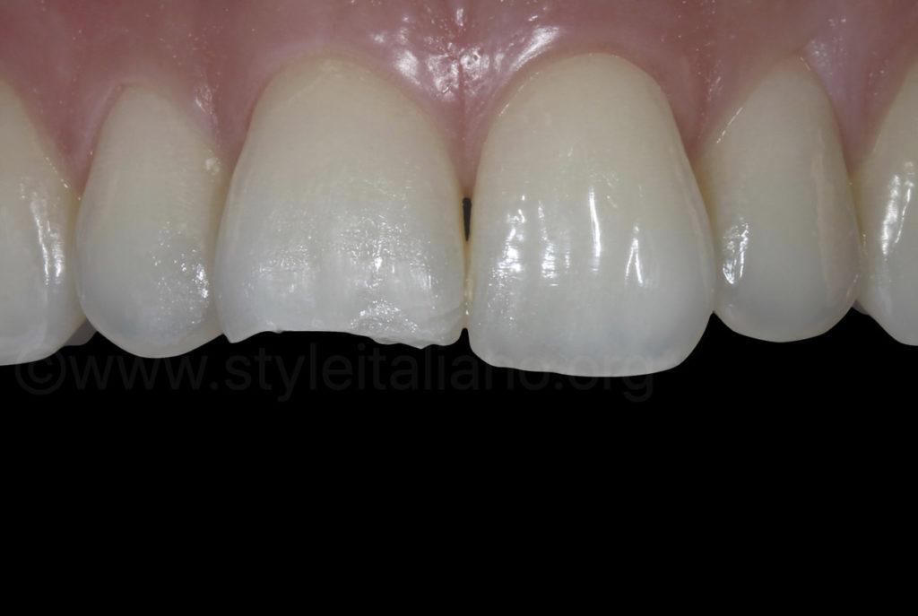 broken upper right incisor
