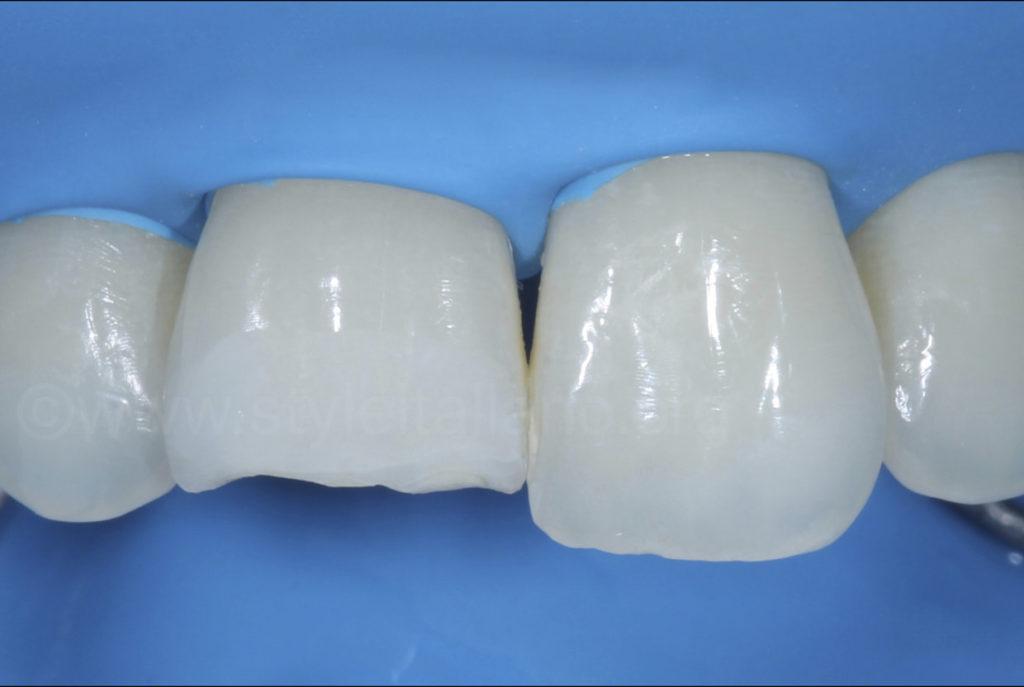 bevel preparation of class 4 cavity
