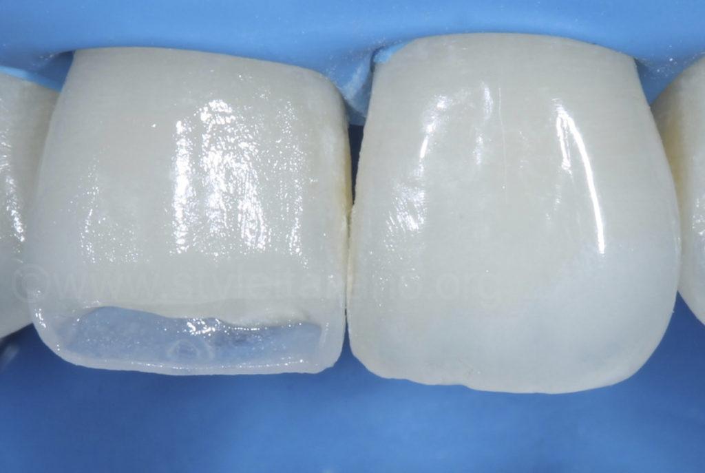 palatal composite build up for composite incisor restoration