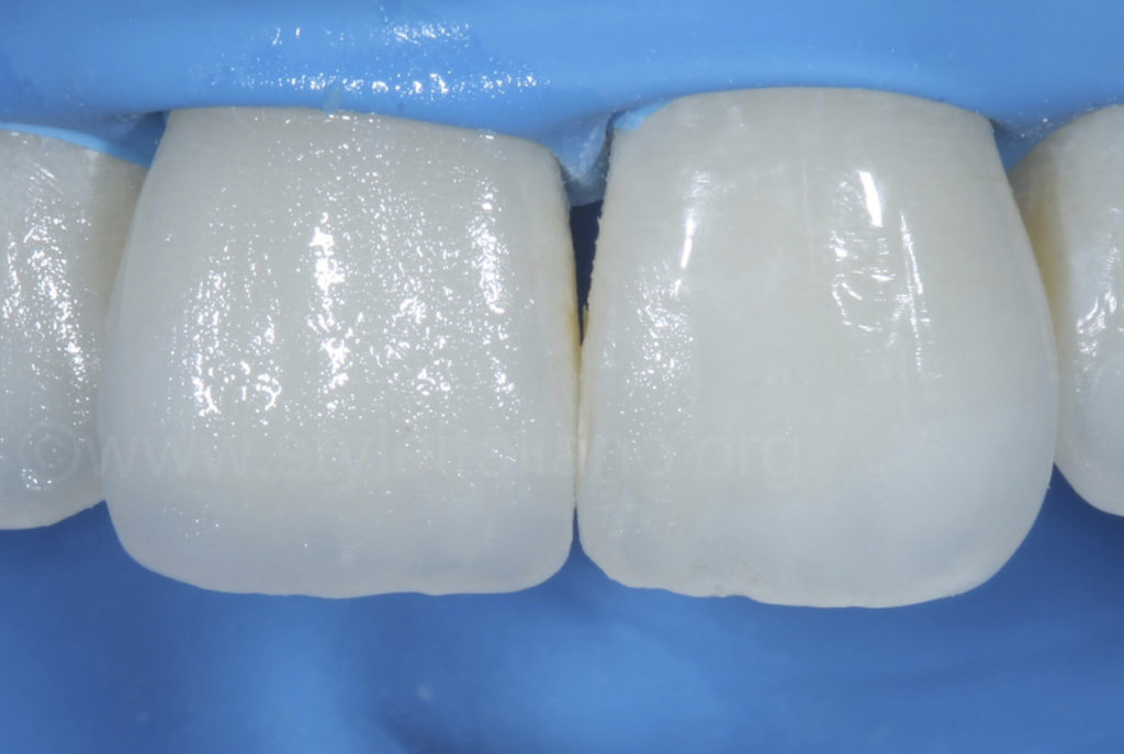 layered composite resin on central incisor