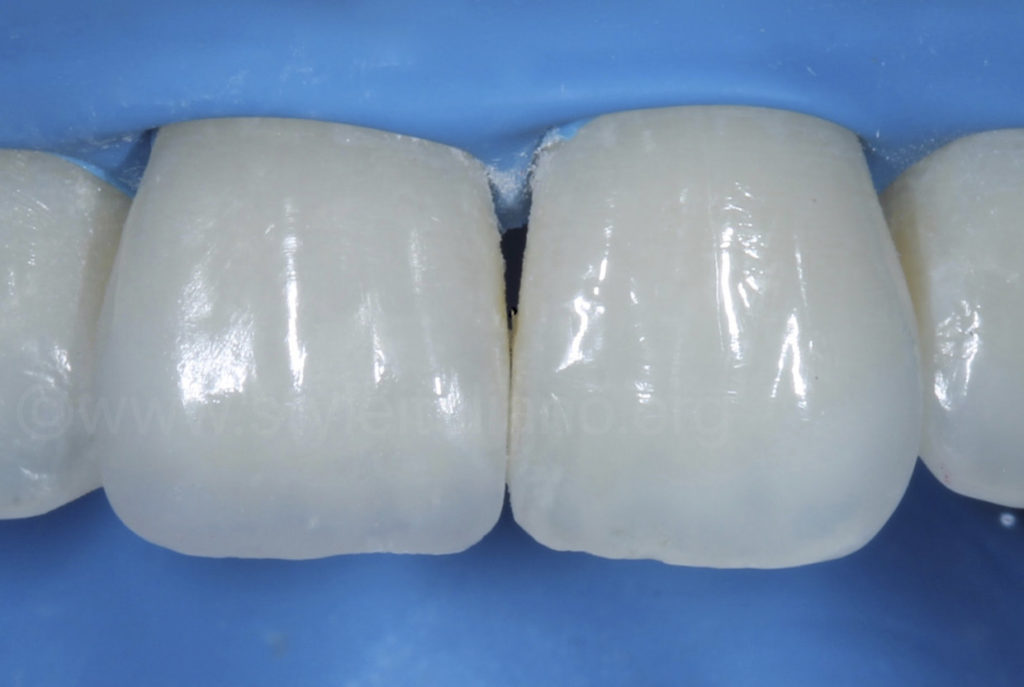 composite resin restoration after reshaping