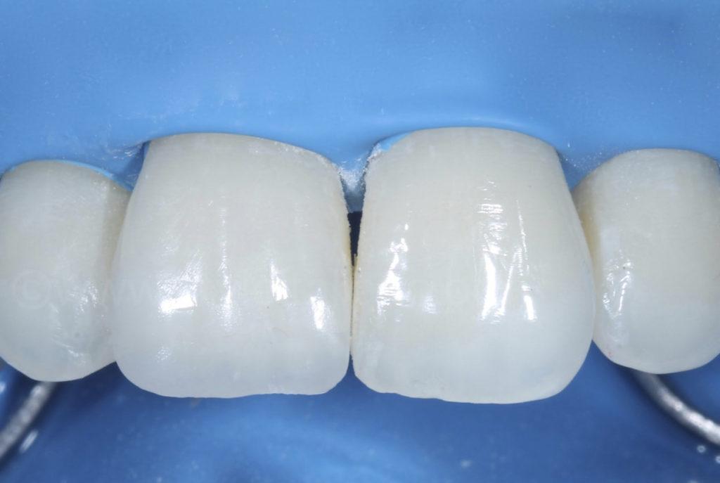composite restoration on central incisor after polishing