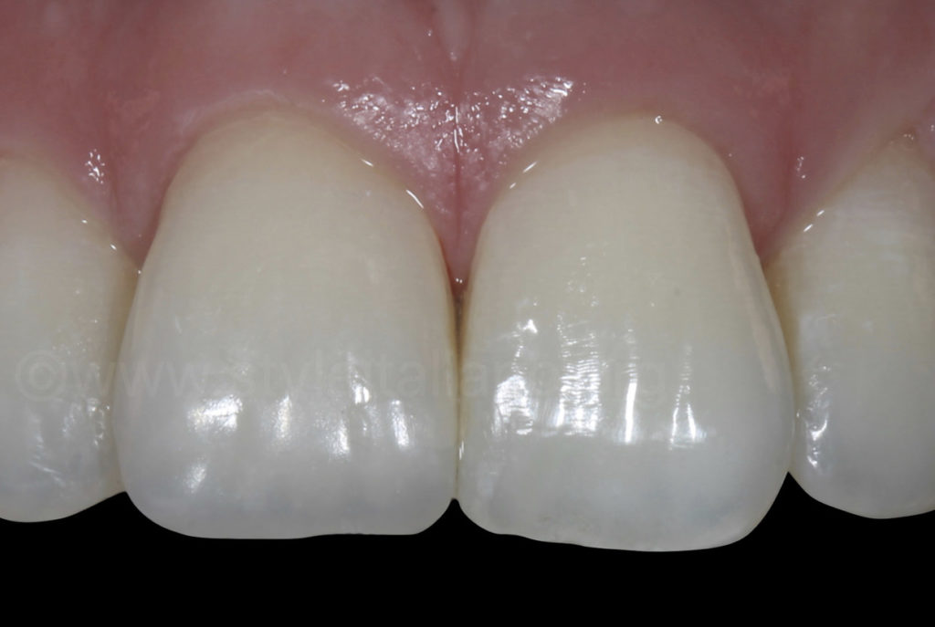 composite restoration check after rehydration