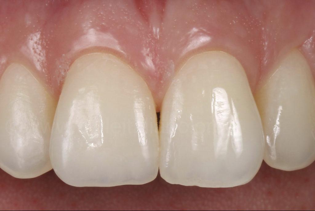 composite restoration of upper central incisor