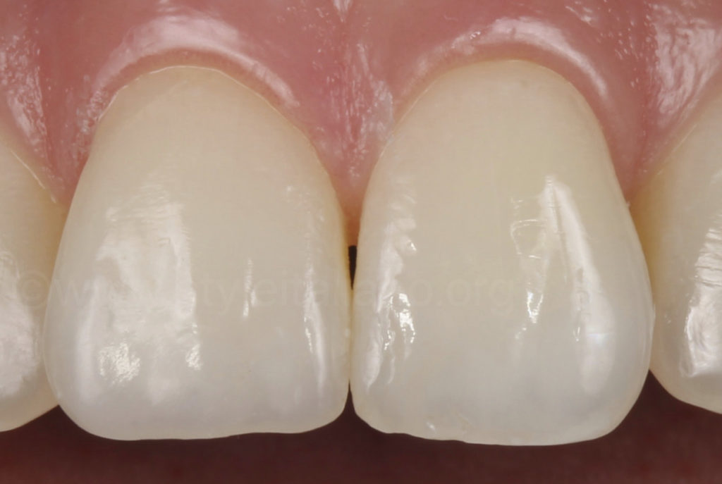 composite restoration after one year