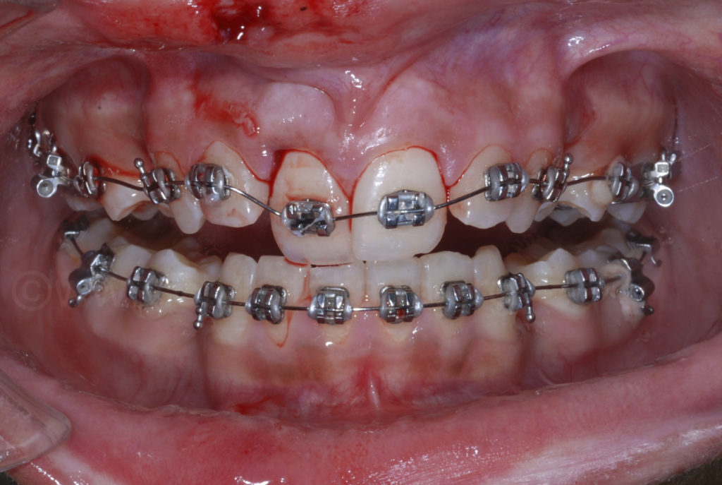 sports accident with brackets