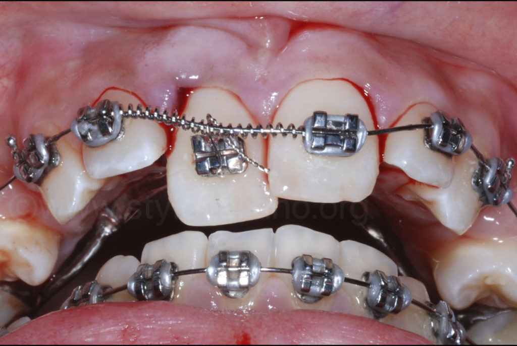 spring and brackets to reposition incisor