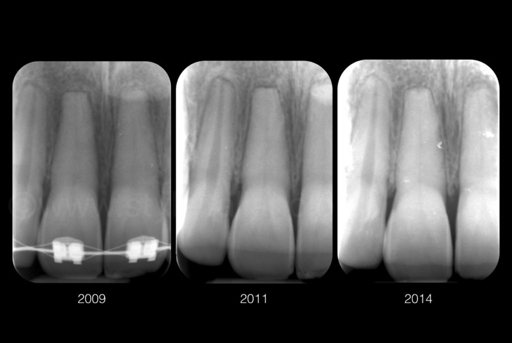 x-ray scans after accident