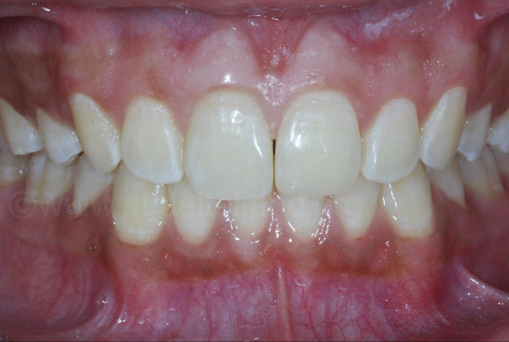 aligned teeth after orthodontics