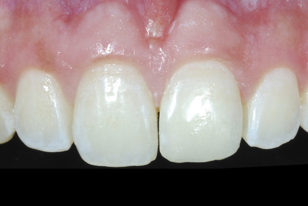 healthy teeth after trauma and orthodontic treatment