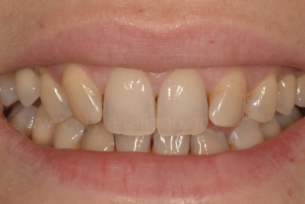 upper arch with missing lateral incisors