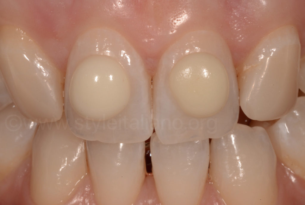 incisor with composite shade button try