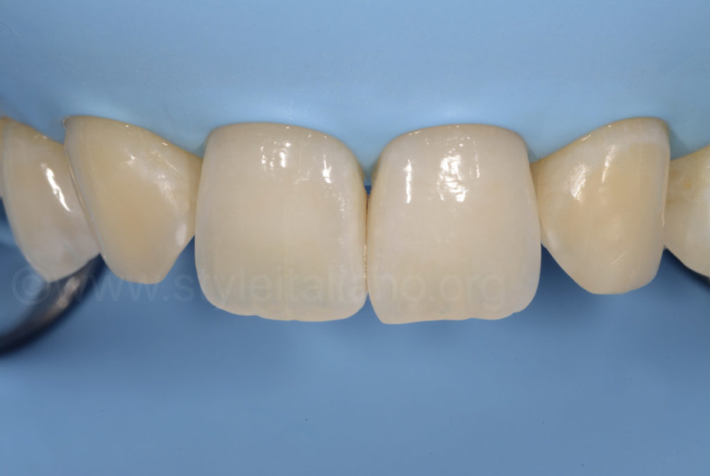 canines before being reshaped into lateral incisors