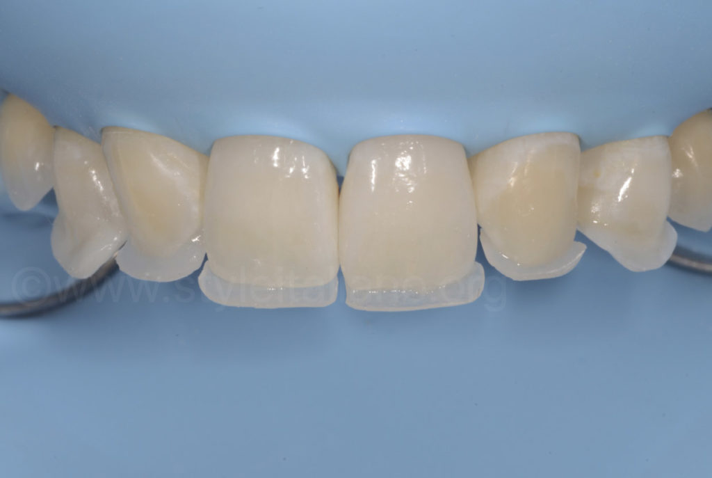palatal composite shells for dental reshaping