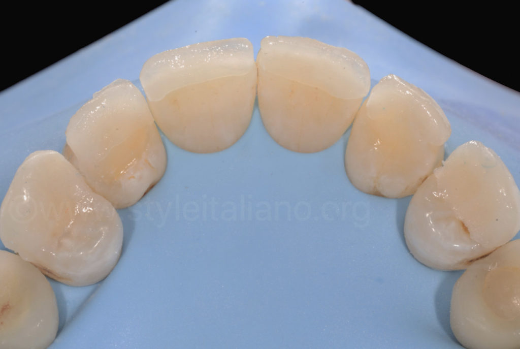 occlusal view after shape modification