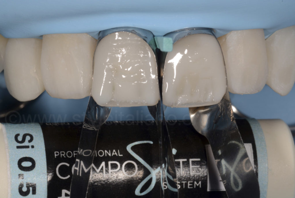 composite resin layering on central incisors