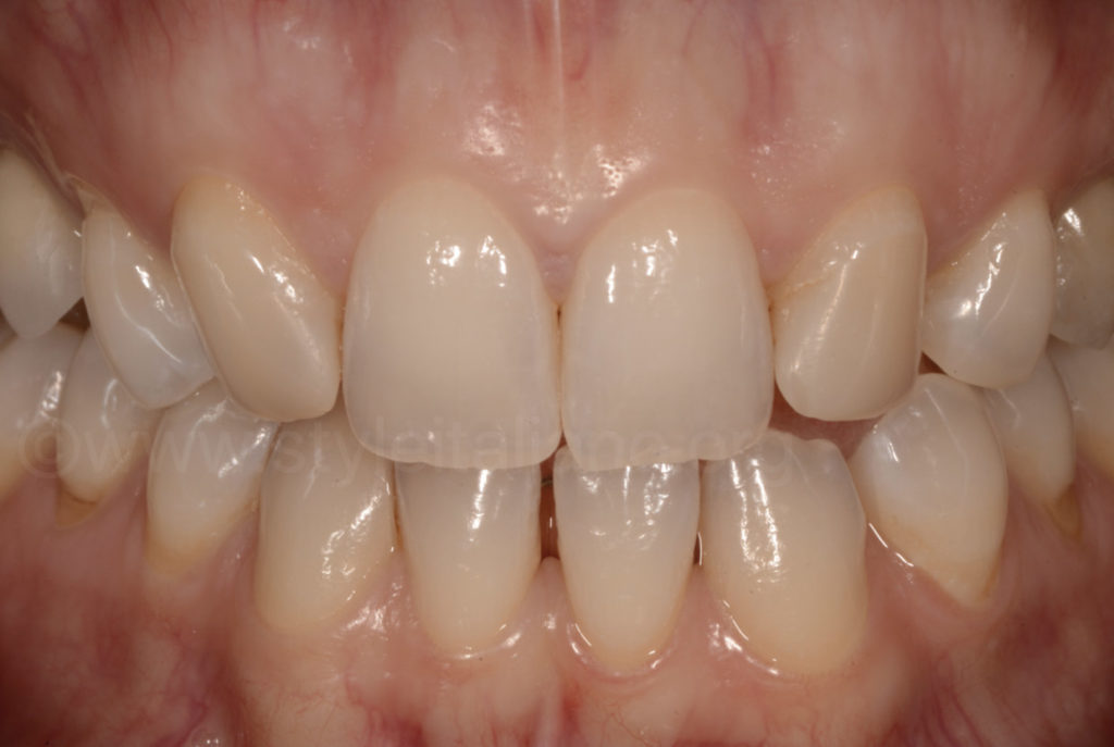 result after home bleaching before composite restoration