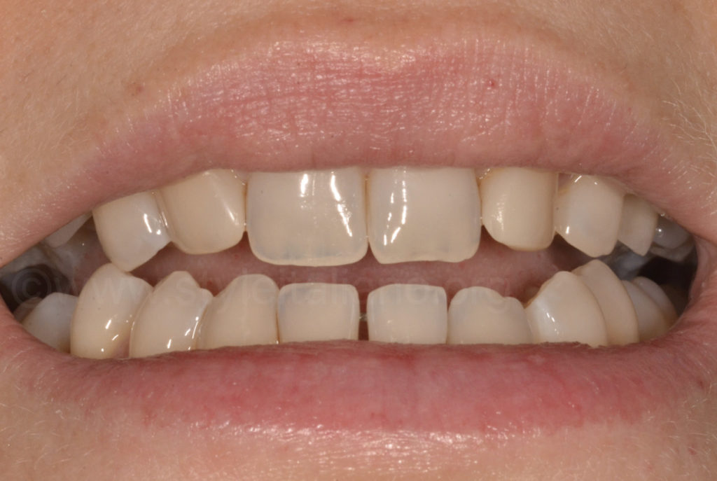 occlusal guide check