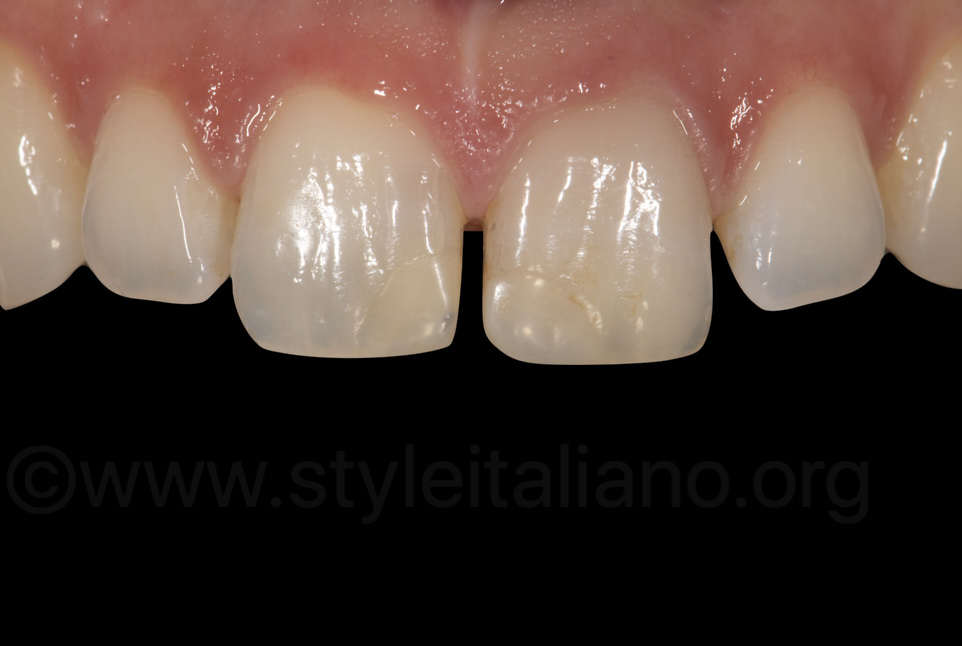 intraoral view of old composite resin