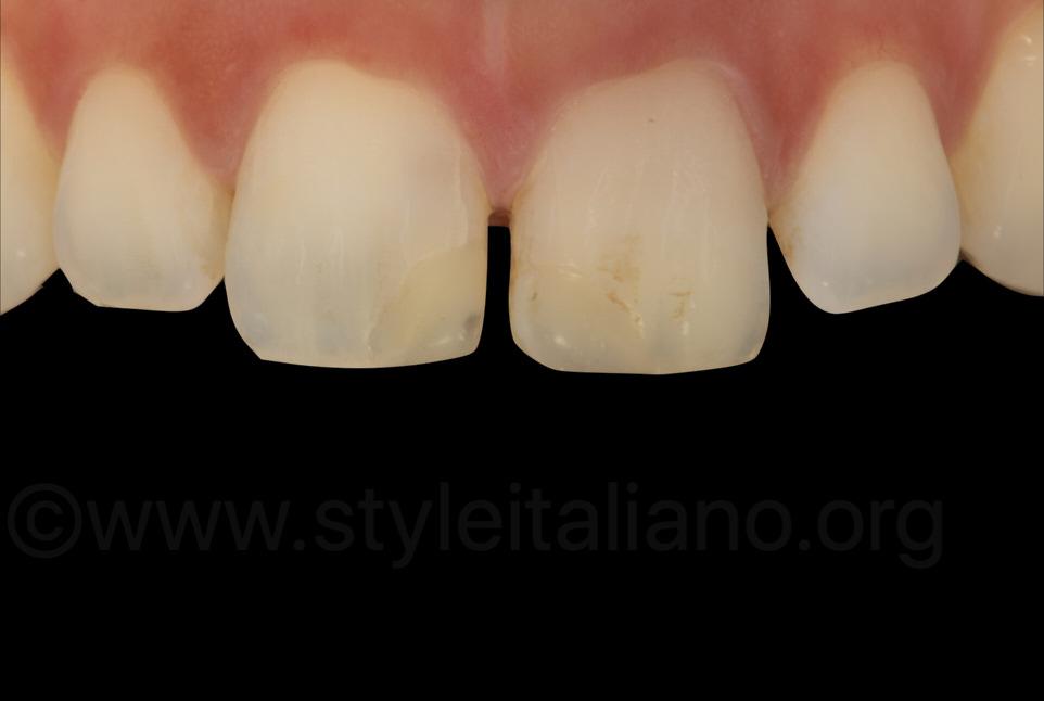 cross polarisation dental photography