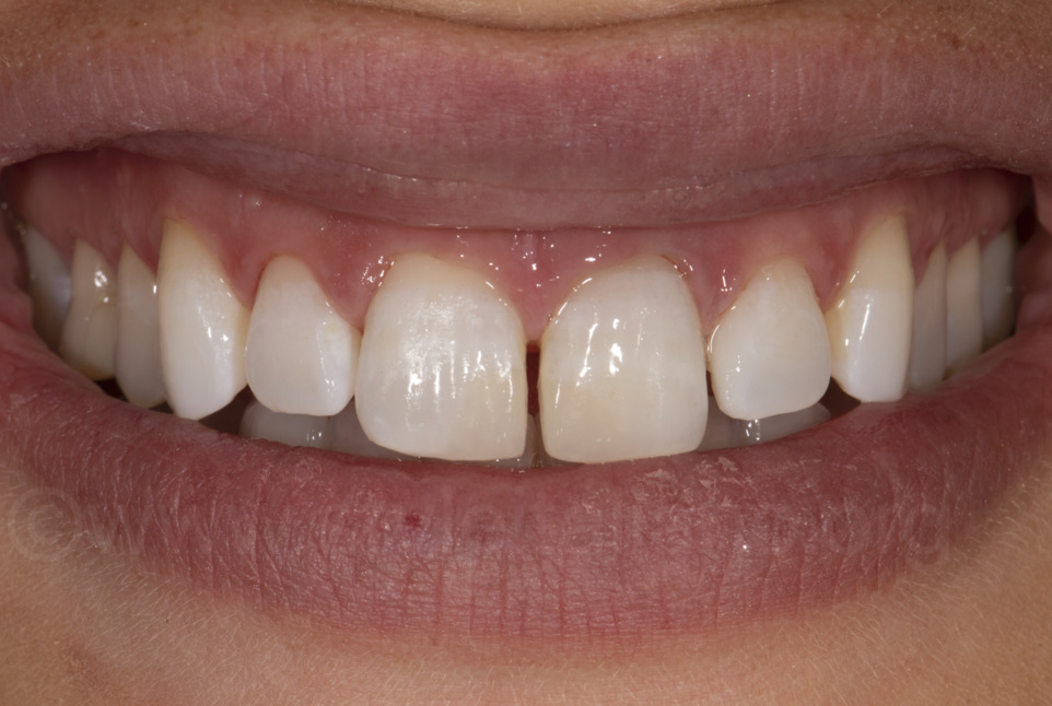final result of restored incisors