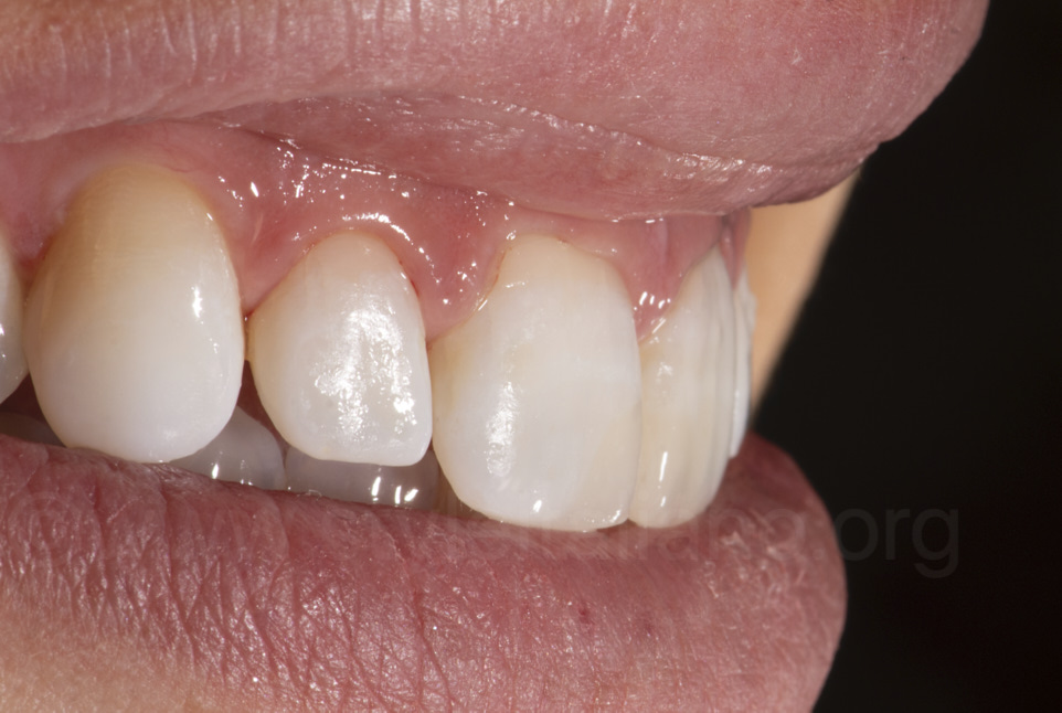 composite resin mimicry between teeth