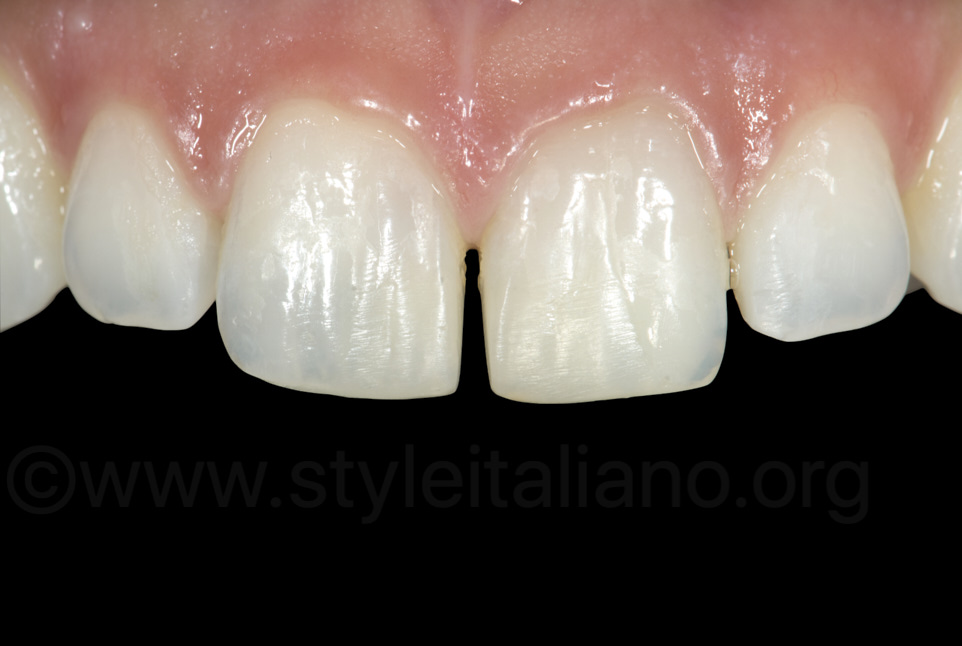 final result after composite reconstruction of incisors