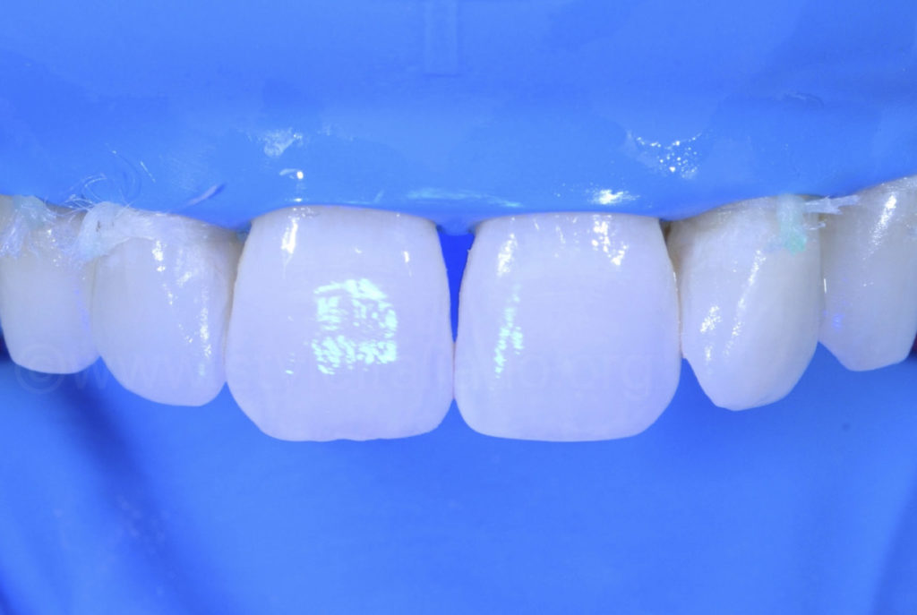 resin light curing after infiltration