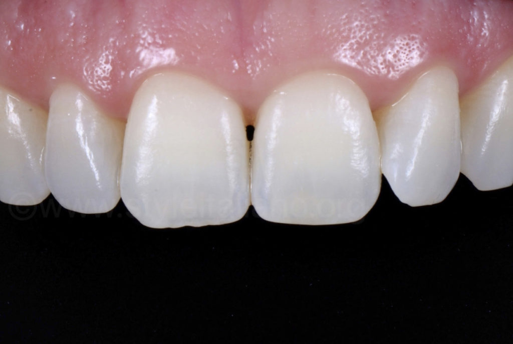 cross polarised picture for tooth color