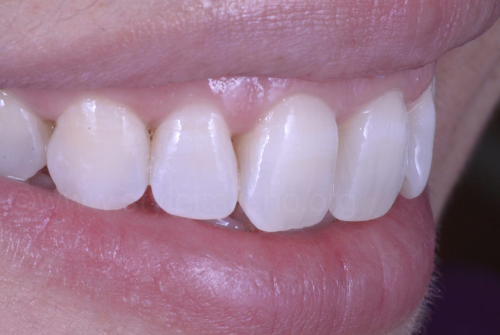 lateral smile