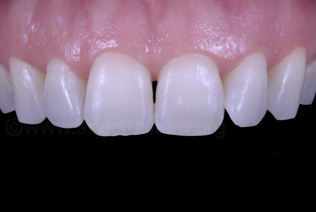 white teeth after infiltration