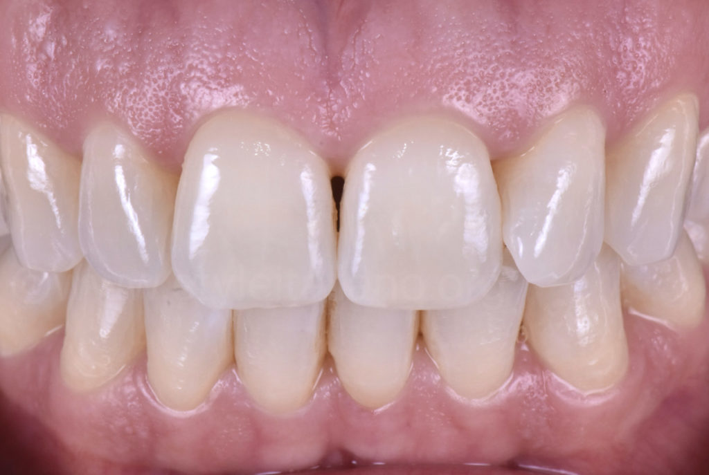 intra oral picture of teeth