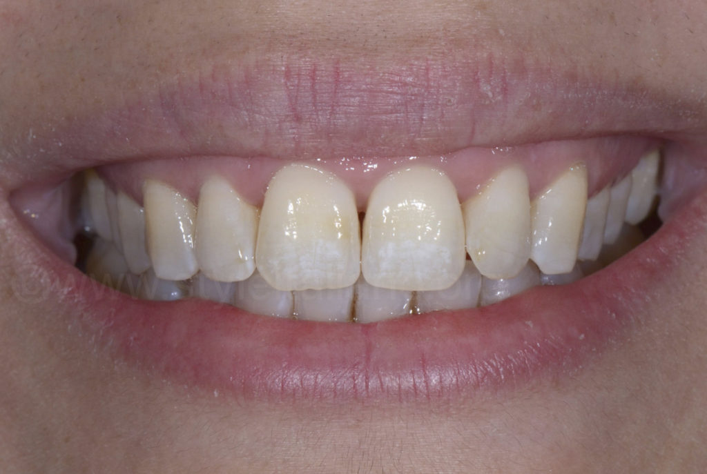 Patient smile before bleaching