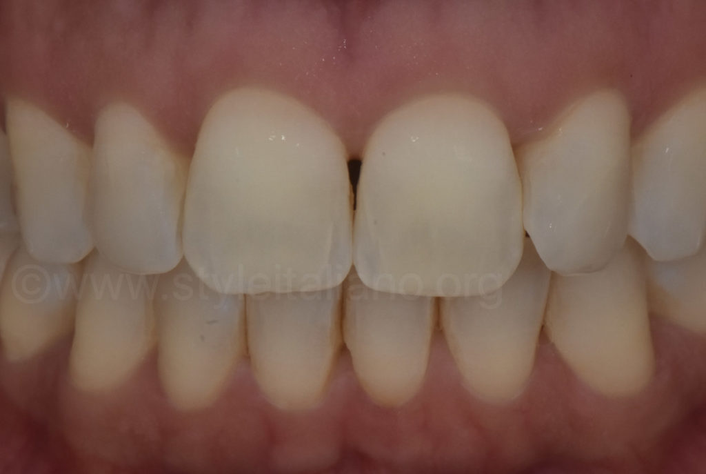 polarized photo for tooth color