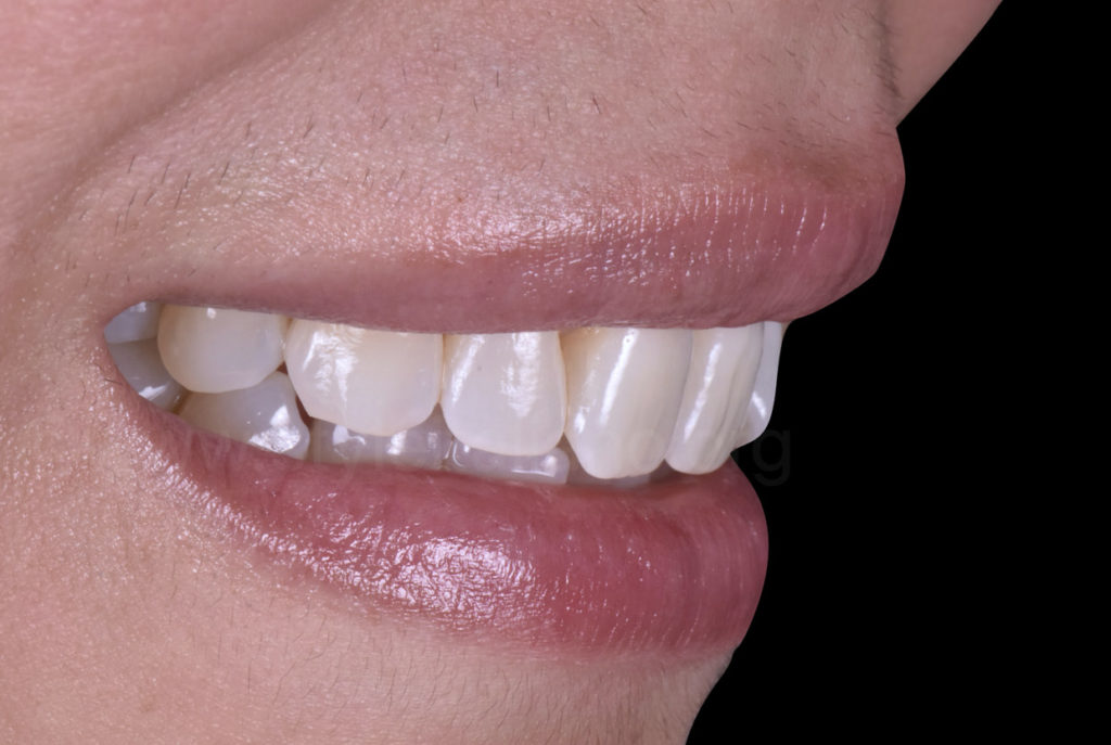 teeth mouth display