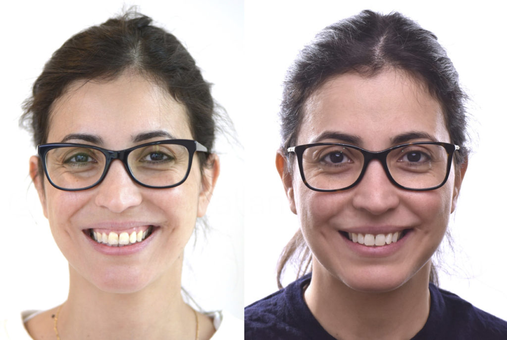 beofre and after whitening and infiltration treatment
